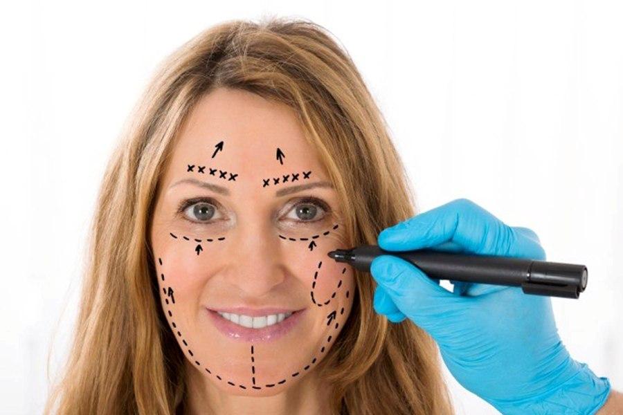 Проведение операции по липофилингу лица